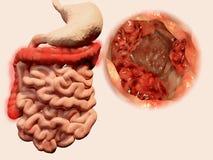 Vorkommen von Tumoren im Magen-Darm-Kanal stock abbildung