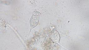 Vorticella род protozoan видеоматериал