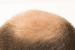 Vorzeitige Kahlheit, Mann, 40s, weißer Hintergrund stockfotos