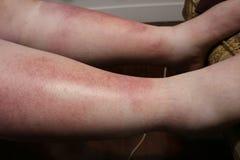 Vreselijke zonbrandwond op wijfjesbeen dat zonvergiftiging heeft veroorzaakt royalty-vrije stock afbeelding