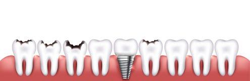 Várias condições dos dentes Foto de Stock Royalty Free