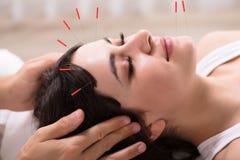 Vrouw die acupunctuurbehandeling ontvangen royalty-vrije stock fotografie