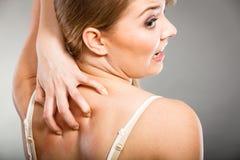 vrouw die haar krassen jeukerig terug met allergieuitbarsting Stock Foto's