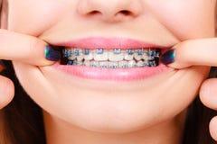 Vrouw die haar tanden met steunen tonen Royalty-vrije Stock Foto