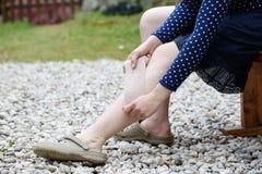 Vrouw die met spataders compressieverband toepassen Royalty-vrije Stock Afbeelding