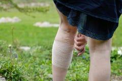 Vrouw die met spataders compressieverband toepassen Royalty-vrije Stock Fotografie