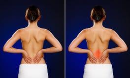 Vrouw die pijnrug masseren stock foto