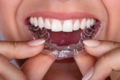 Vrouw die Transparante Aligner in Tanden zetten stock afbeelding