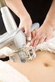 Vrouw die vacuümbehandeling ontvangen bij lichaamskliniek stock foto