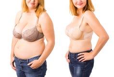 Vrouw before and after gewichtsverlies royalty-vrije stock fotografie