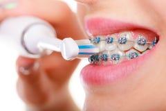 Vrouw het glimlachen schoonmakende tanden met steunen Stock Foto's