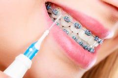 Vrouw het glimlachen schoonmakende tanden met steunen Royalty-vrije Stock Foto's