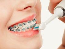 Vrouw het glimlachen schoonmakende tanden met steunen Royalty-vrije Stock Afbeelding