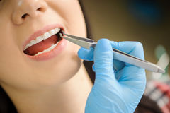 Vrouw met ceramische steunen op tanden op het tandkantoor stock foto's