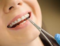 Vrouw met ceramische steunen op tanden op het tandkantoor royalty-vrije stock fotografie