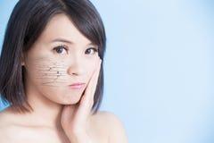 Vrouw met droge huid stock afbeelding