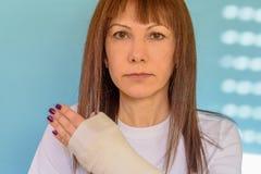 Vrouw met gebroken wapenbeen in gegoten, gepleisterde hand op blauwe achtergrond royalty-vrije stock fotografie