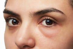 Vrouw met rood oog royalty-vrije stock afbeelding