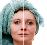Vrouw met spotty huid royalty-vrije stock fotografie