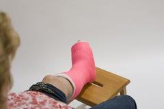 Vrouw met voet in gegoten Royalty-vrije Stock Foto's