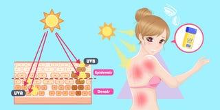 Vrouw met zonnebrandprobleem stock illustratie