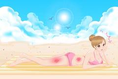 Vrouw met zonnebrandprobleem vector illustratie