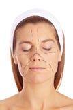 Vrouw vóór plastische chirurgie met lijnen Royalty-vrije Stock Fotografie