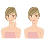 Vrouw van de vlek de drogende huid royalty-vrije illustratie