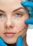 Vrouwelijk gezicht vóór plastische chirurgieverrichting stock foto