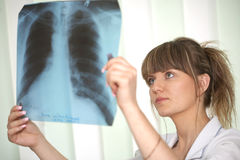 Vrouwelijke arts die een röntgenstraal onderzoekt Stock Foto