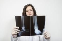 Vrouwelijke arts die nauwkeurig een voetröntgenstraal onderzoeken stock afbeeldingen