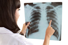 Vrouwelijke arts wat betreft x-ray document Royalty-vrije Stock Foto's