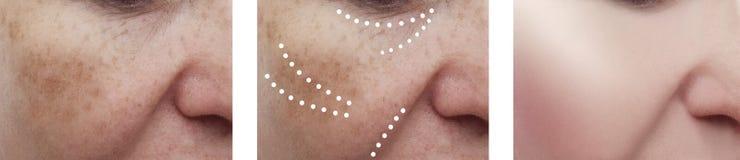 Vrouwelijke gezichtsrimpels geduldige regeneratie before and after effect de dermatologie van collageprocedures royalty-vrije stock afbeeldingen