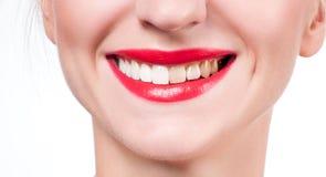 Vrouwelijke glimlach before and after bleken Het witten van Tanden stock afbeelding