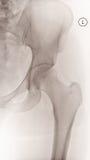 Vrouwelijke Linkerheupröntgenstraal Stock Afbeeldingen