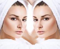 Vrouwelijke neus before and after kosmetische chirurgie royalty-vrije stock foto