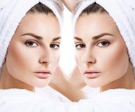 Vrouwelijke neus before and after kosmetische chirurgie stock foto's