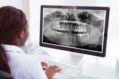 Vrouwelijke tandarts die kaakröntgenstraal op computer in kliniek onderzoeken Royalty-vrije Stock Afbeelding