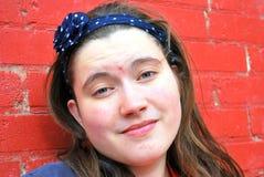 Vrouwelijke tiener met acne Stock Afbeeldingen