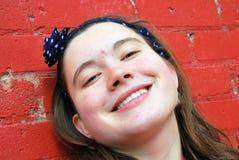Vrouwelijke tiener met acne Royalty-vrije Stock Fotografie