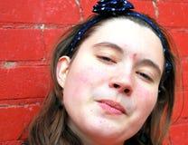 Vrouwelijke tiener met acne Royalty-vrije Stock Afbeeldingen