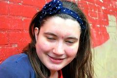 Vrouwelijke tiener met acne Royalty-vrije Stock Afbeelding
