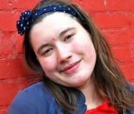 Vrouwelijke tiener met acne Royalty-vrije Stock Foto's