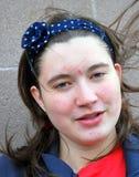 Vrouwelijke tiener met acne Stock Foto