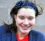 Vrouwelijke tiener met acne Stock Afbeelding