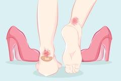 Vrouwelijke voeten in pijn stock illustratie