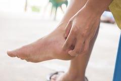 Vrouwen die voeten krassen Royalty-vrije Stock Afbeeldingen