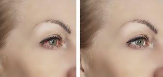 Vrouwen rood oog voordien na van het de visieprobleem van de symptoom bloeddoorlopen behandeling de proceduresoftalmologie stock fotografie