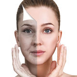 Vrouwen` s gezicht before and after verjonging royalty-vrije stock foto's
