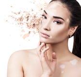 Vrouwengezicht met vitiligo van kruimelig poeder wordt gemaakt dat royalty-vrije stock foto